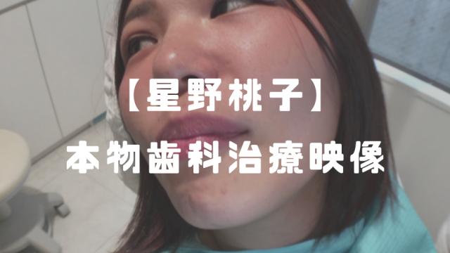 【21歳】星野桃子│歯フェチ用!本物歯科治療(左下6・7銀歯)
