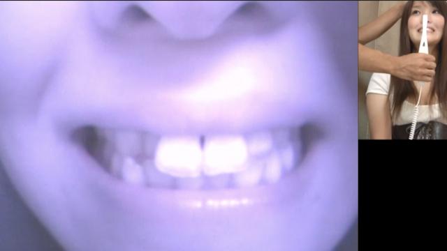 あかね│前歯