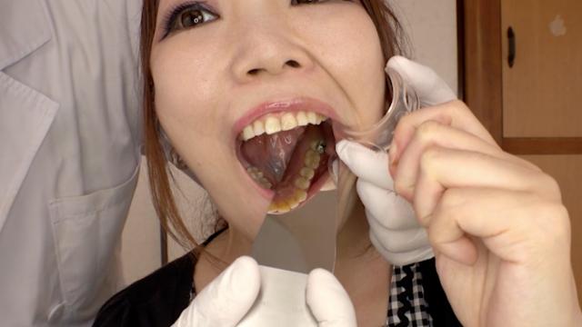えりあ│銀歯