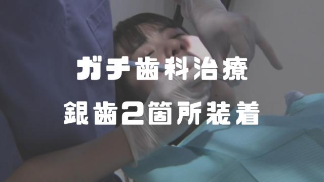 若葉しずく│ガチ歯科治療→銀歯(インレー)2箇所装着動画