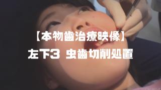 堀越まき│歯フェチ向け本物歯科治療映像 ~左下3う蝕処置~