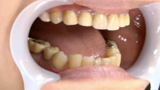 小室優奈│下顎の歯観察