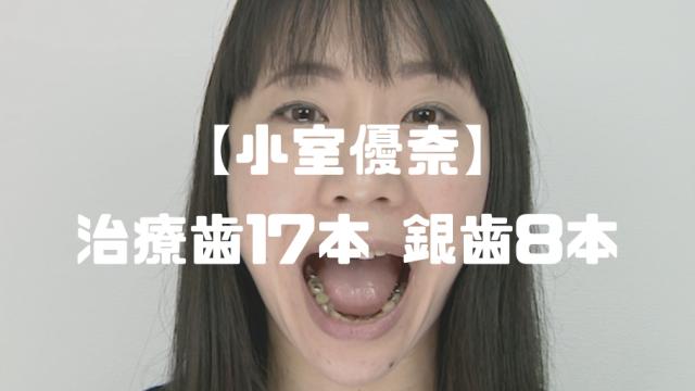 小室優奈│治療歯17本に銀歯8本の口内観察動画