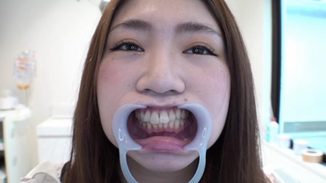 本物歯科治療抜歯│かえでちゃん