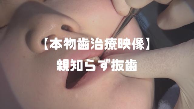 芹沢かえで│本物歯科治療 ~親知らず抜歯観察動画~