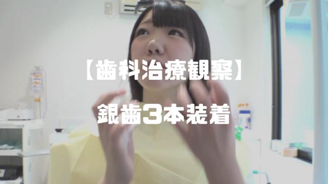 柏木茉奈│本物歯科治療 ~インレー(銀歯)3本切削+装着動画~