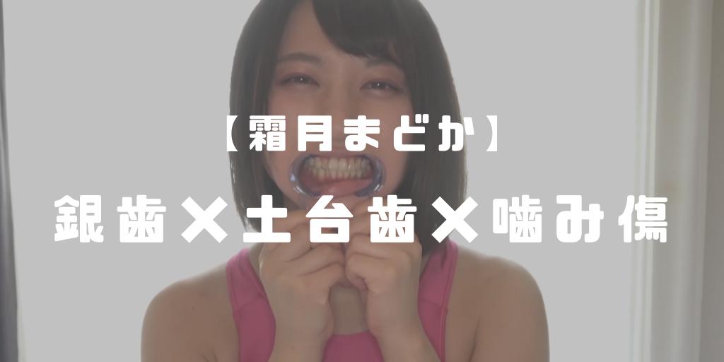 【ブログ更新】 メタルインレー(銀歯)観察 →https://clan-donaldson.com/?p=876 人気女優・有村のぞみちゃん( @nozomi_arimura )の口内観察動画です。 下顎に銀歯2本はポイント高いですね! 可愛い女の子の口内観察は癒やされる(*´ω`*) #口内フェチ #口腔フェチ #歯フェチ #銀歯フェチ #舌フェチ